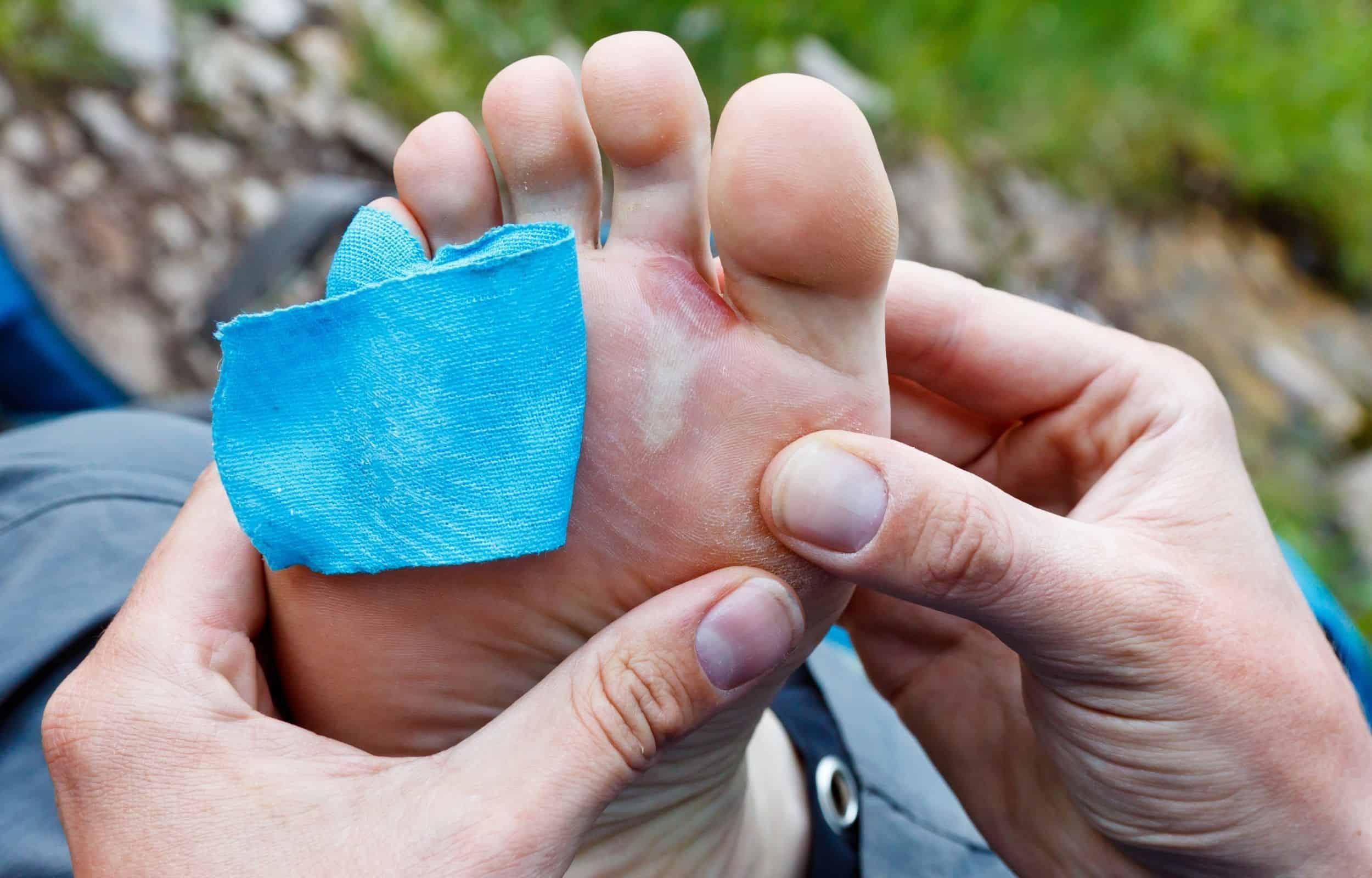 hiking blister