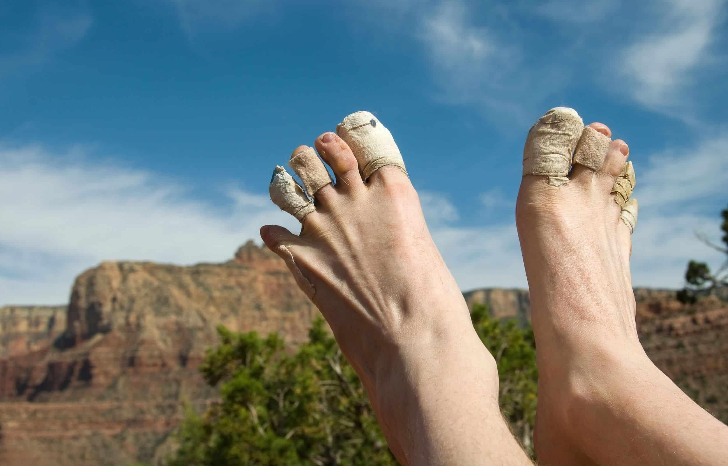 hiking blisters bandaids